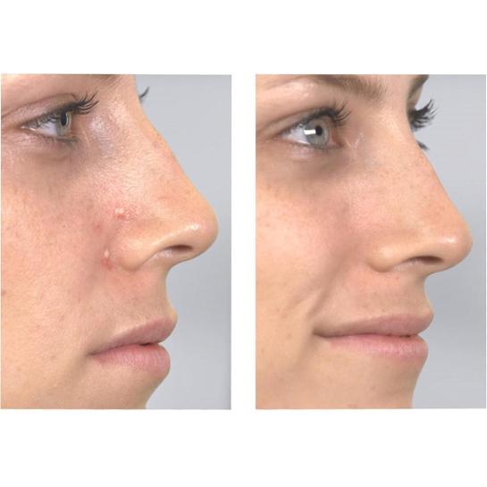 Dermasuction Gezichtsreiniger8